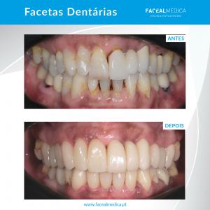 facetas dentárias antes e depois